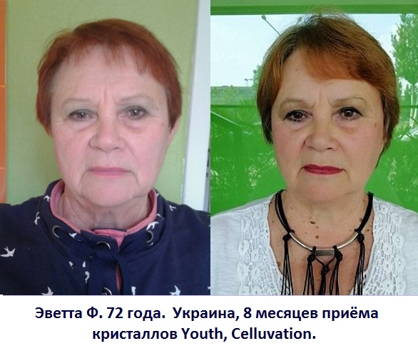 celluvation youth results